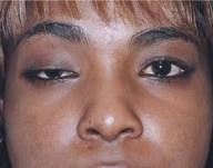 droopy eyelid picture